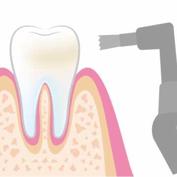 美容歯科クリーニング