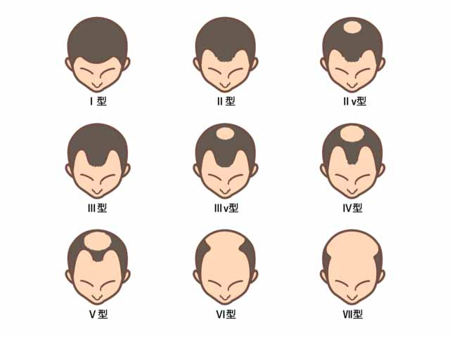 男性型脱毛(AGA)